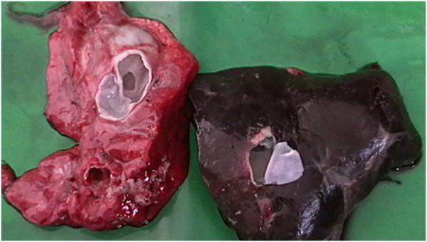 Kystes hydatiques dans le foie et le poumon.