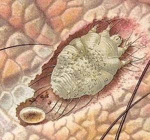 Le nettoyage de lorganisme par la soude des parasites selon neoumyvakinou