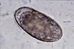 Le sang sur les anticorps chez les entozoaires à invitro